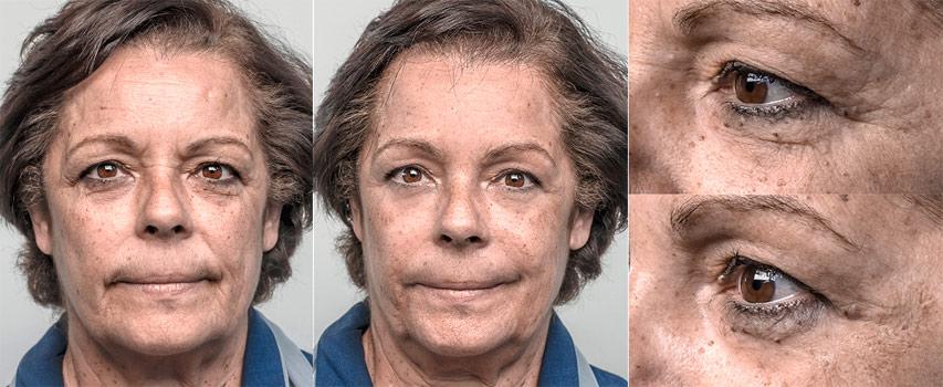 Antes e Depois Mulher