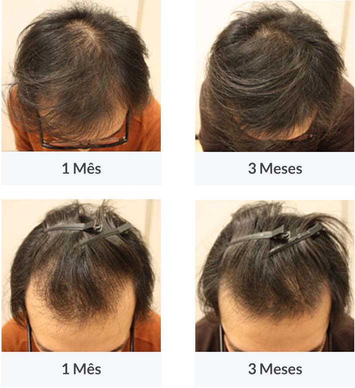 João, 32 anos, 3 meses de tratamento com HairCaps. Visivelmente, as falhas de cabelo acabaram!