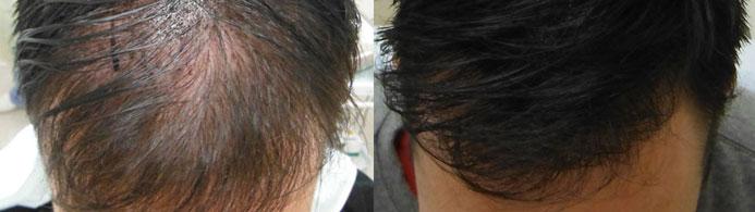 Diferença visível: Falha capilar é preenchida e o couro cabeludo fica mais saudável em pouco tempo de tratamento com HairCaps!