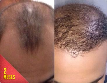 Antes e depois: um tratamento muito mais barato que implante capilar, com resultados muito melhores e permanentes!